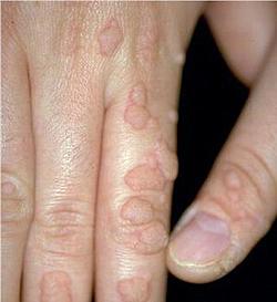 Qui est porteur du papillomavirus
