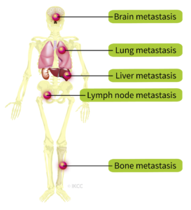 Cancer - Wikipedia