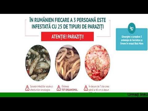 Tipuri de viermi de cunoștințe umane, Viermi si paraziți intestinali – tipuri, simptome, tratament