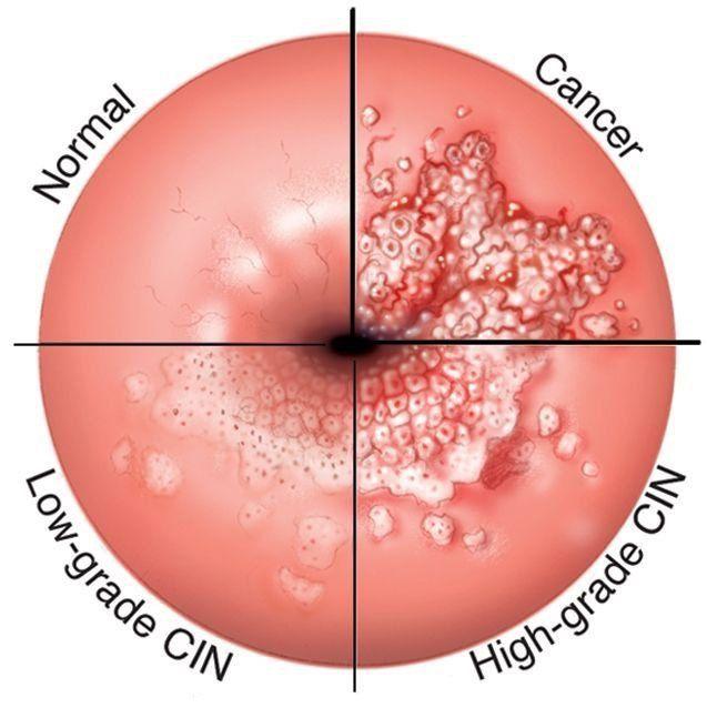 papilloma virus colposcopia diferența dintre negi și negi genitale
