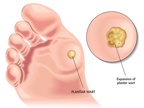 ce tipuri de papilom mancarimi nas viermi intestinali