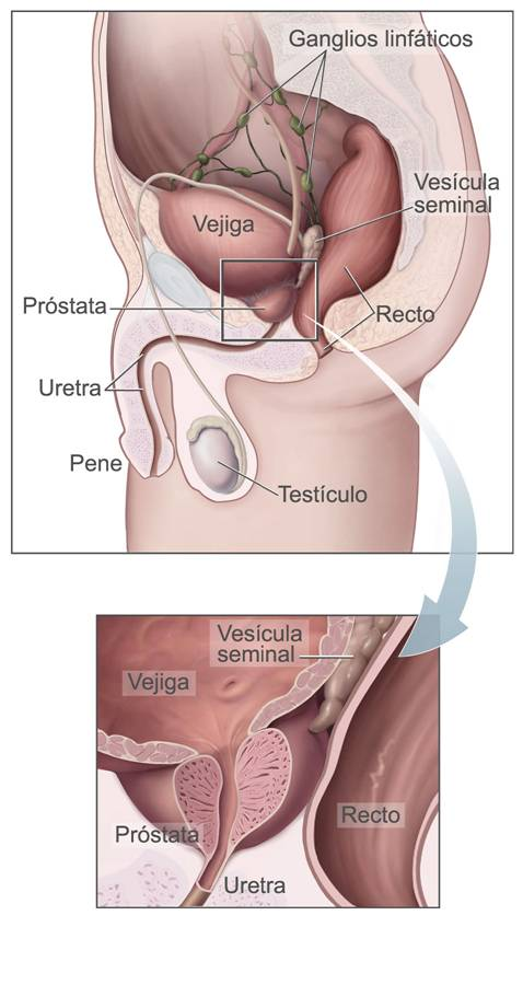 cancer de prostata maligno colorectal cancer symptom