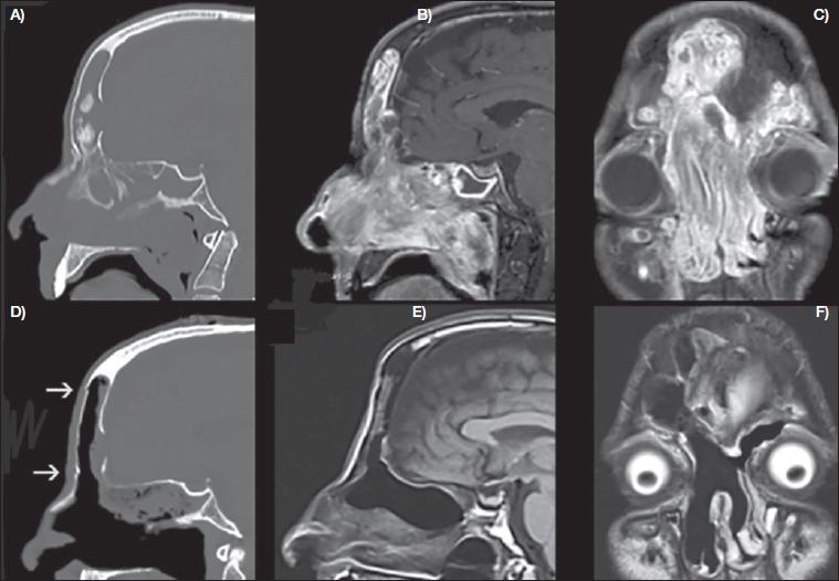 inverted papilloma frontal sinus mri cum să tratezi viermii în anus