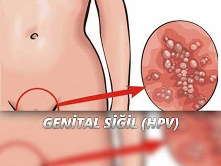 Hpv virusu nedir tedavisi. Papilloma virus e linfonodi ingrossati