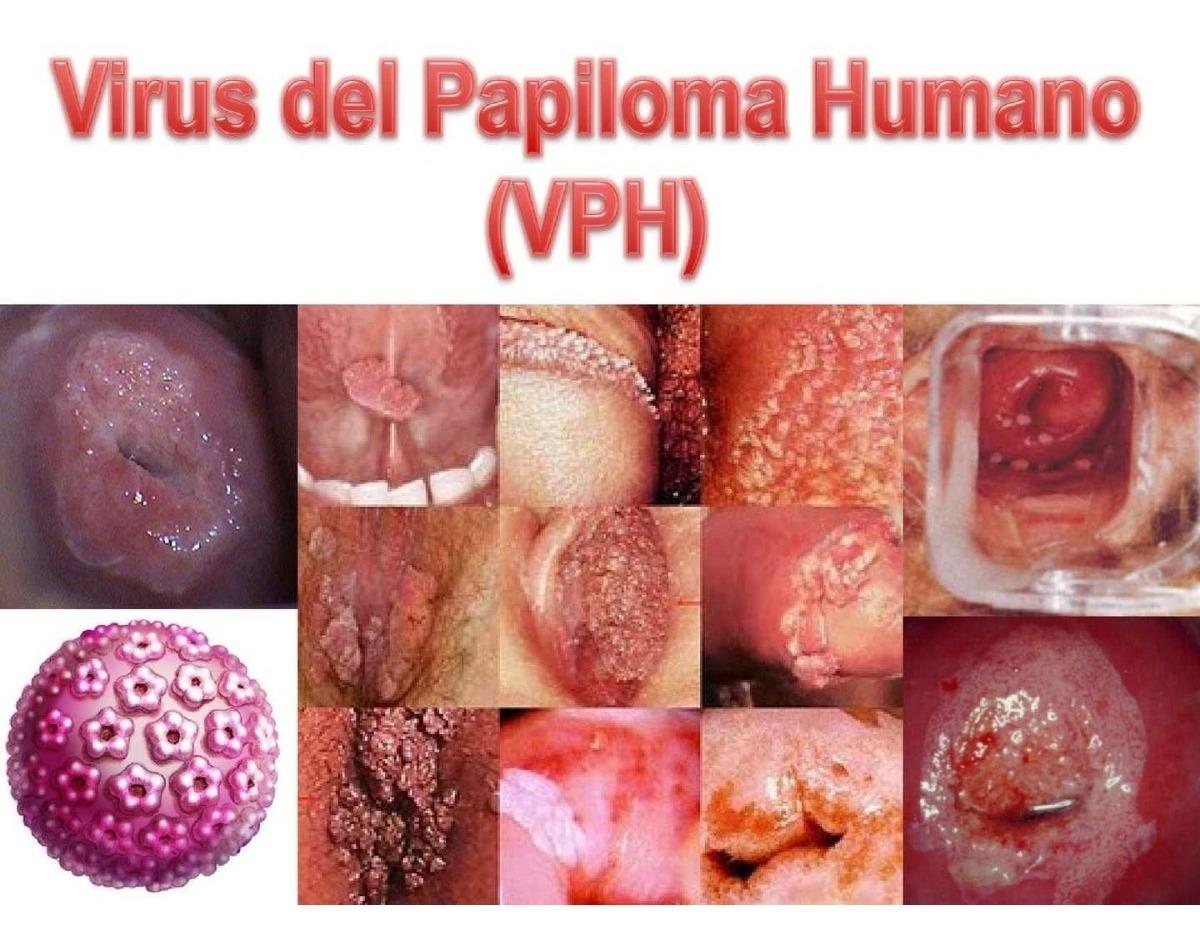 virus del papiloma gonorrea condiloame și fenistil