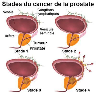 cancer la prostate symptome