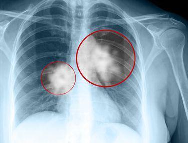 cancerul in ultima faza doare