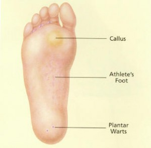 Wart in foot causes, Foot warts causes and treatment