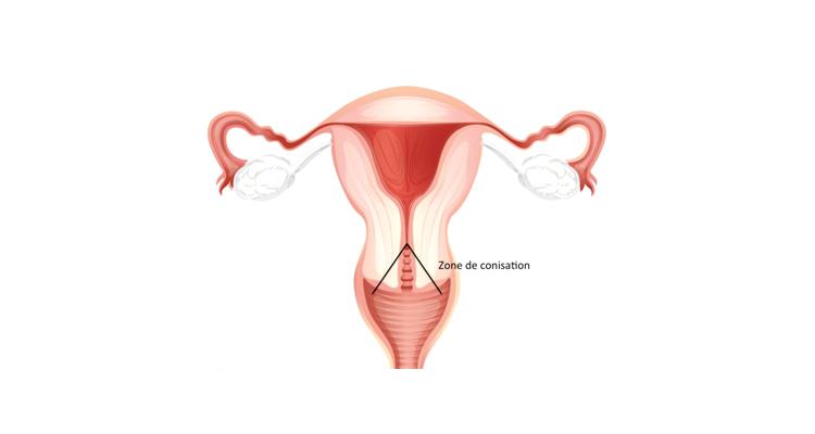 removal of papilloma on uvula