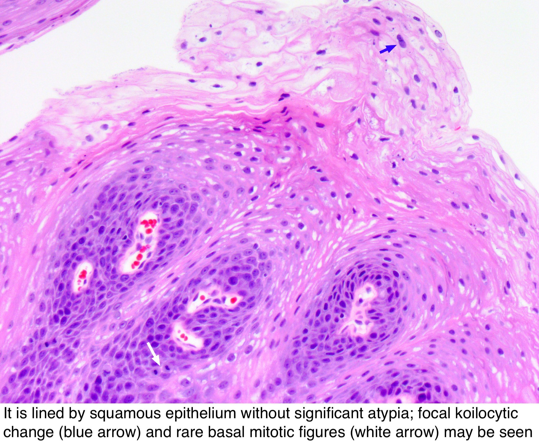 Squamous papilloma path outlines,, Squamous papilloma path outlines