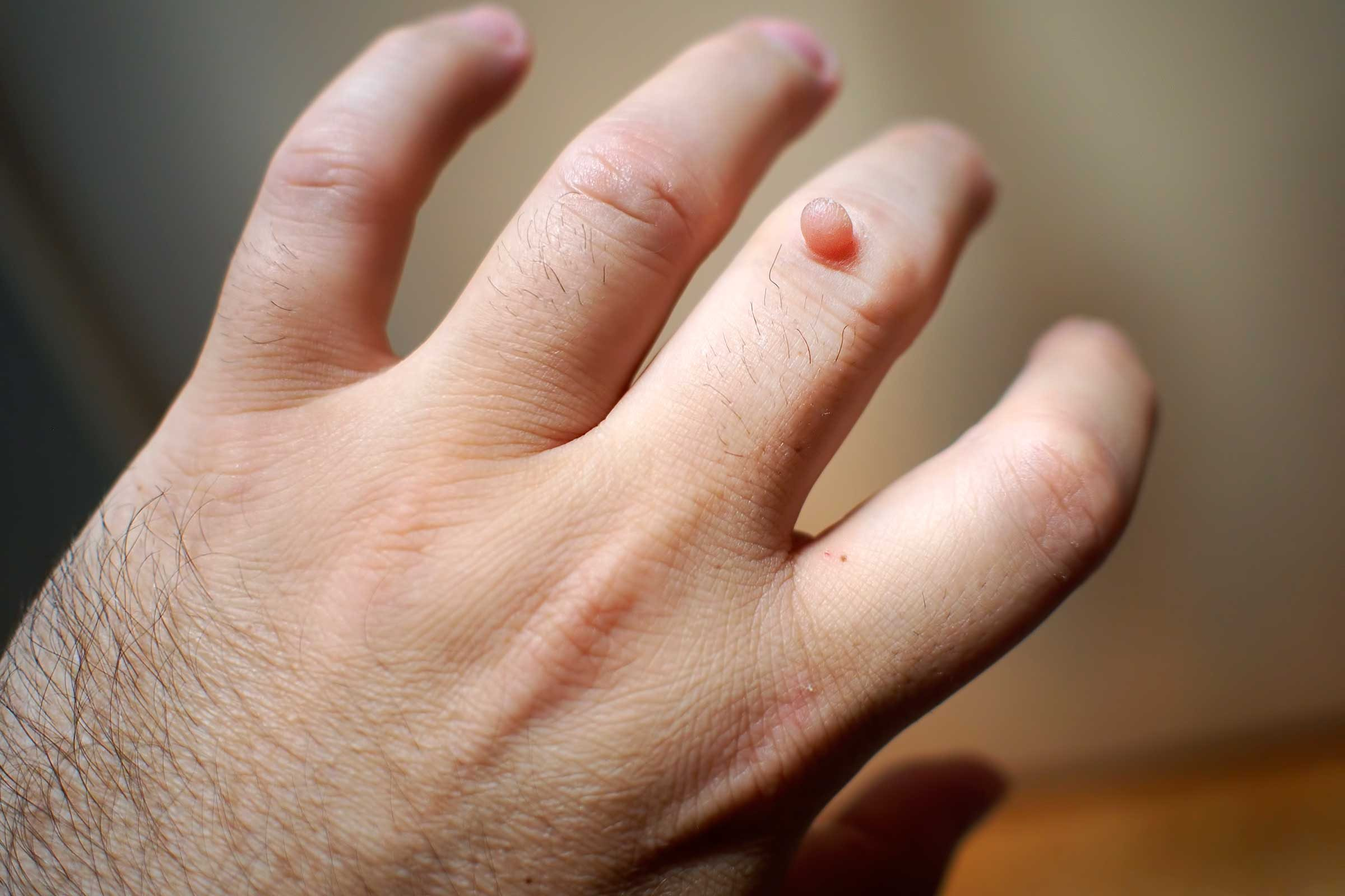 Warts on hands not hpv - Warts on hands not going away, Human papillomavirus pcr