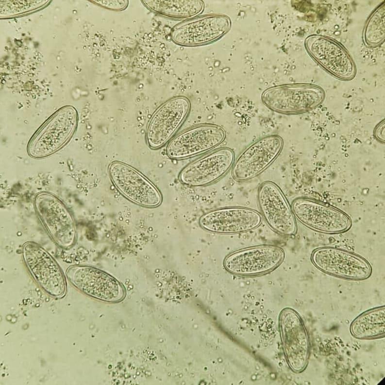 Enterobiasis cadena epidemiologica. Enterobiasis cadena epidemiologica,
