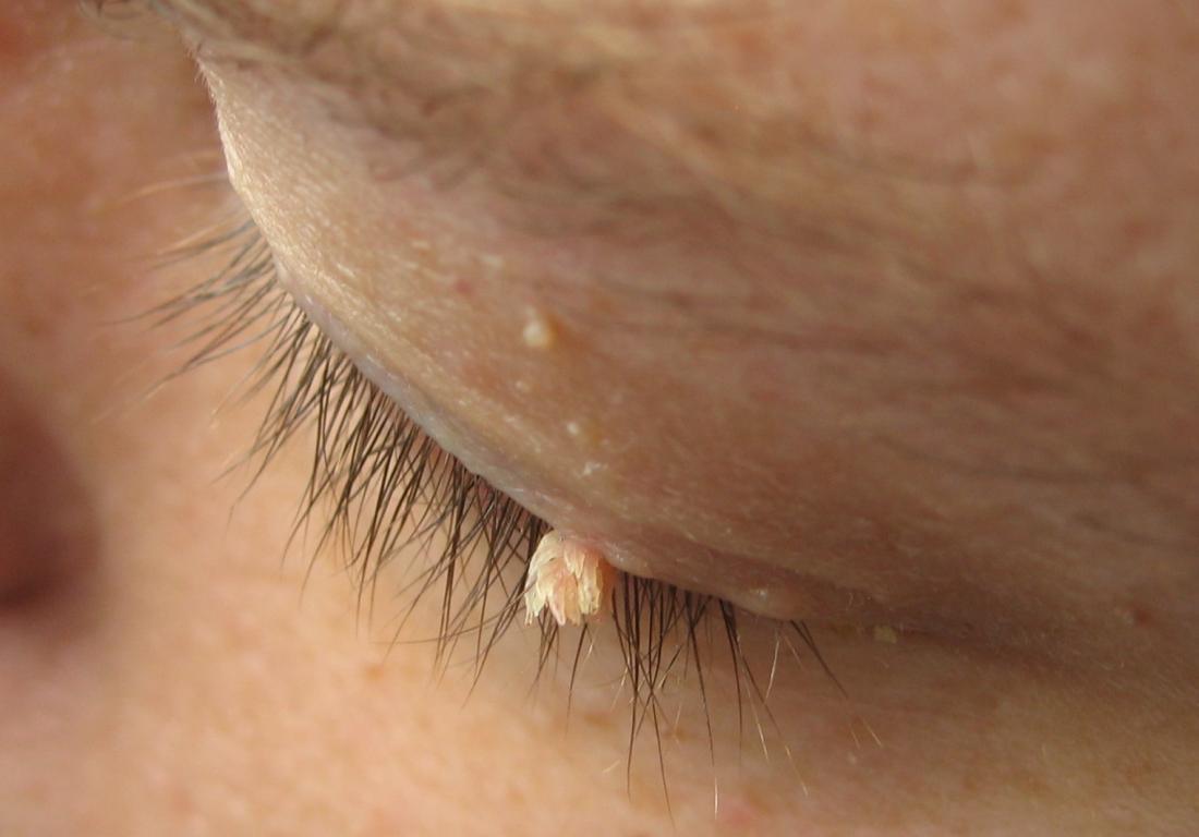 nasal warts nhs
