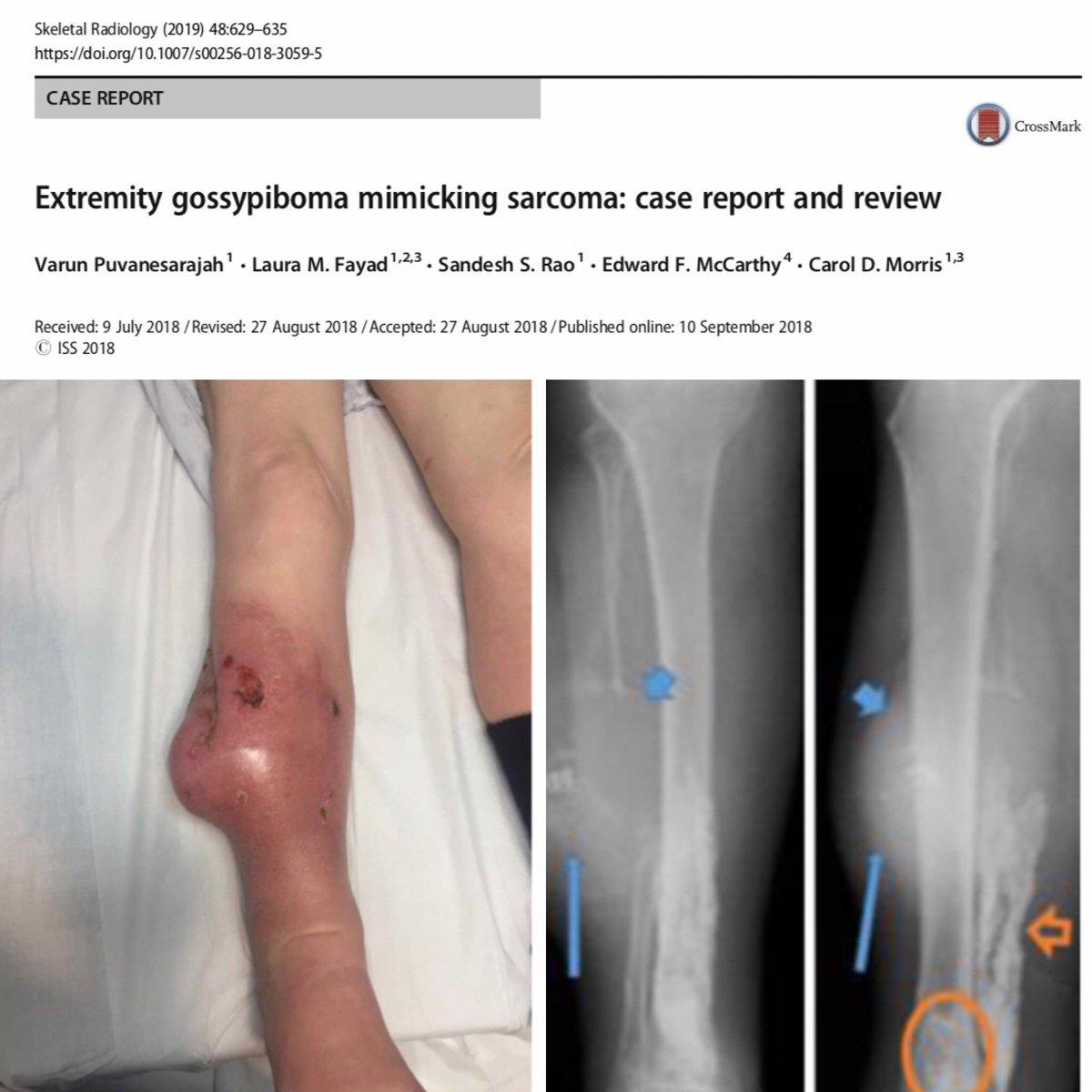 cancer sarcoma jambe în limba condilomului la adulți