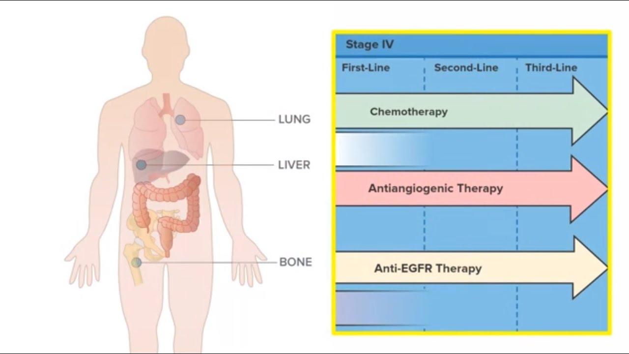 metastatic cancer of the colon papillomavirus oncogene homme