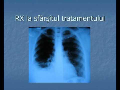 Cancerul pulmonar omoara un roman la 16 minute. Testamentul unui tanar fumator ucis de maladie