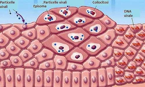 Tumore da papilloma virus uomo