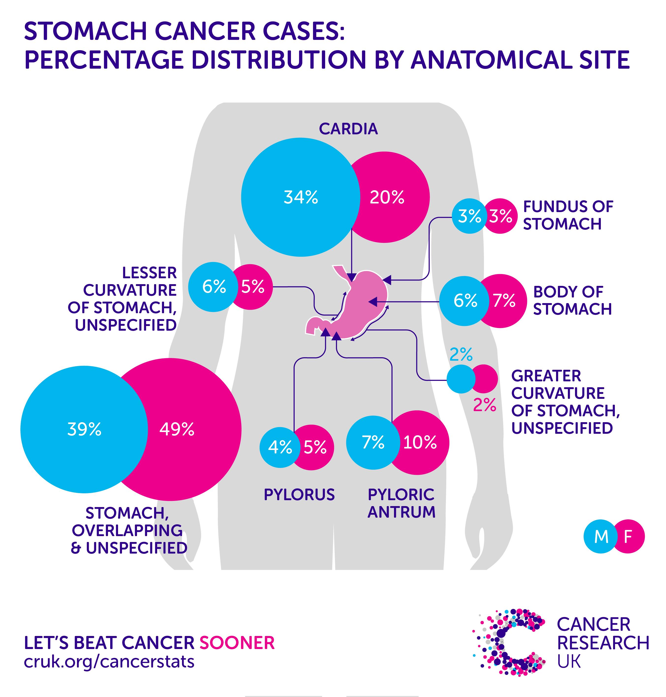 abdominal cancer symptoms male hpv dark skin