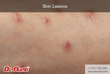 Hpv skin lesion - Case Report Hpv skin lesion