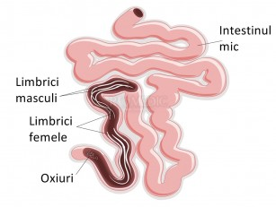 helminți și meningită