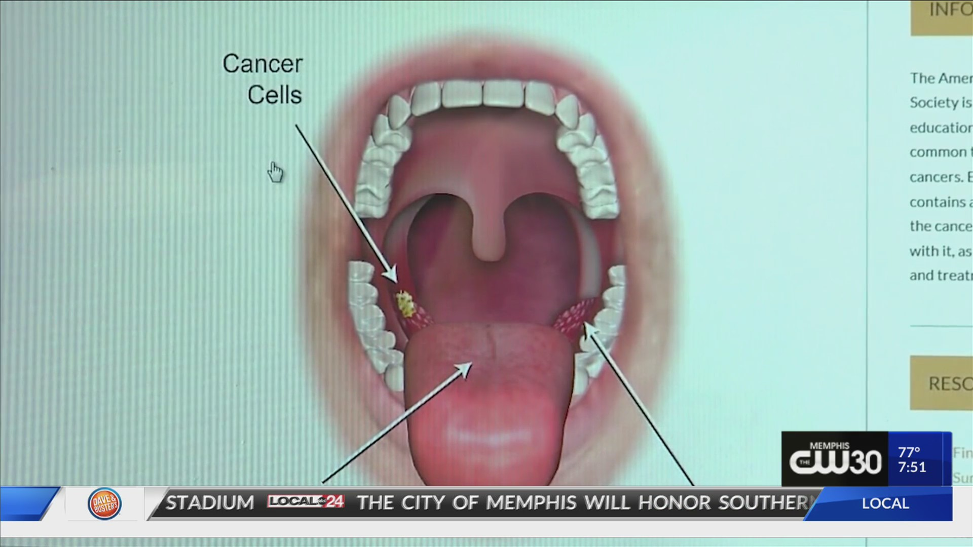 hpv throat infections
