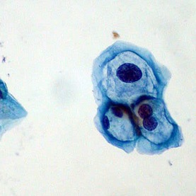 papilloma virus agente patogeno