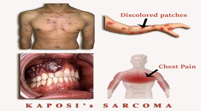 sarcoma cancer pain