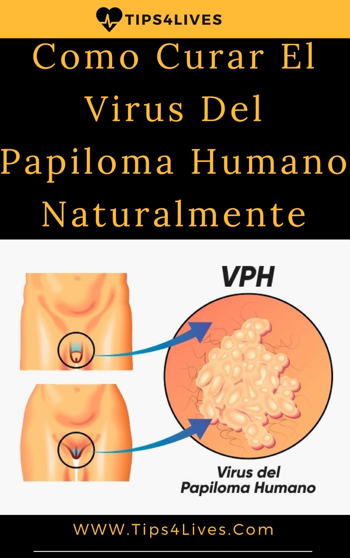 su tratamiento papiloma virus