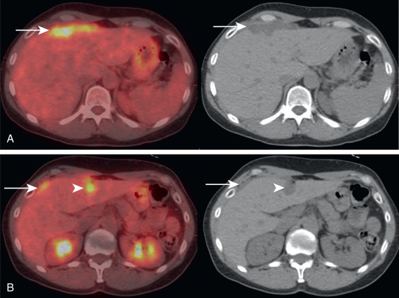peritoneal cancer pet scan