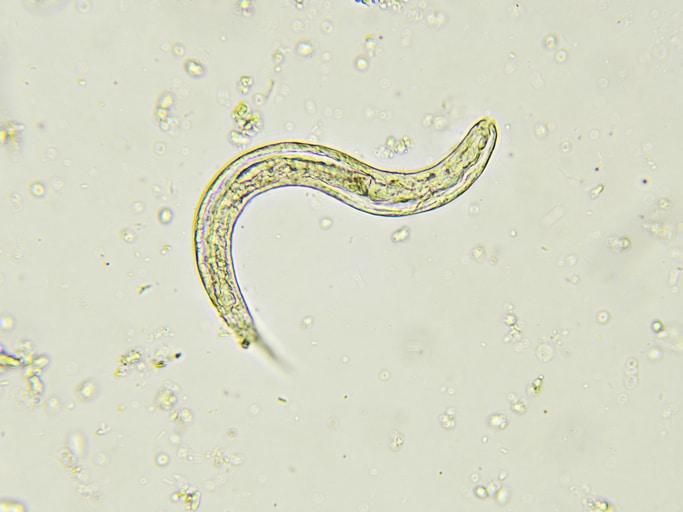 Paraziți e. g. giardia, C6.Pp.srp.Patol Intestin Subtire.paraziti