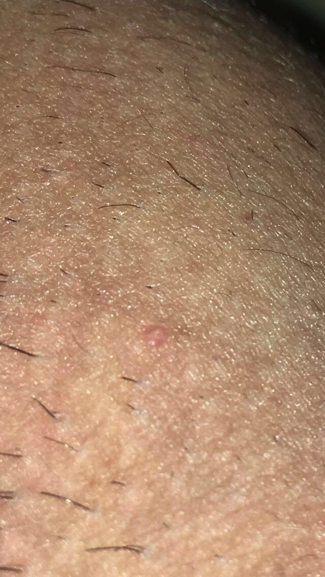 hpv virus wratten handen papilom ginecologie cum se tratează