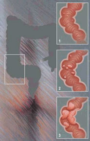 cauze cancerul de colon