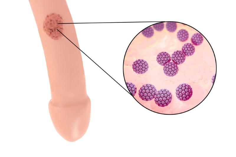 Humanes papillomavirus mann - Papillomavirus behandlung frau. Traducere