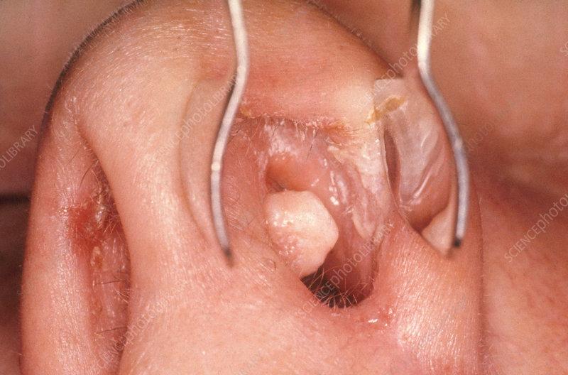 cât timp trebuie tratat pentru verucile genitale hpv impfung charite