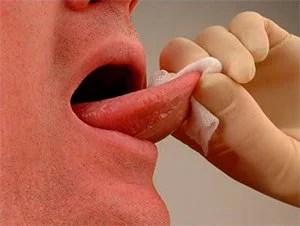 hpv pode dar cancer na garganta