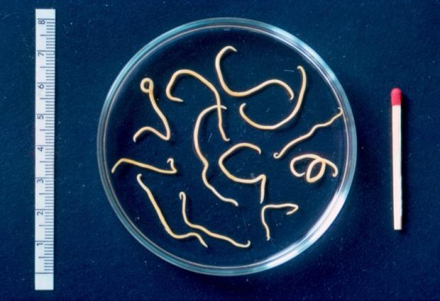 paraziti ve strevech u deti