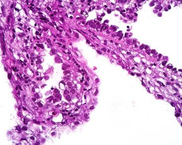 Cancer endometrial diagnostico Cancer endometrial mas comun