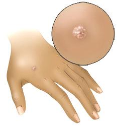 comentarii despre tratamentul negilor plate este posibilă îndepărtarea papilomului roșu