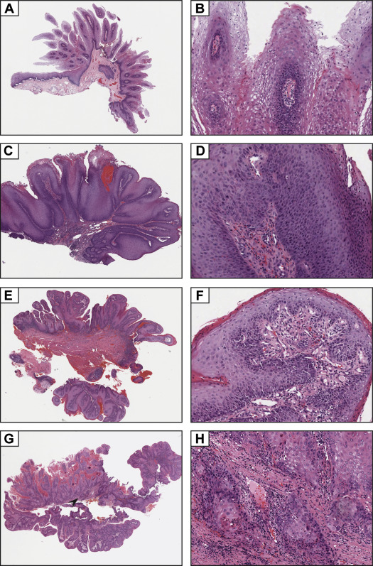 condyloma acuminatum vs squamous papilloma