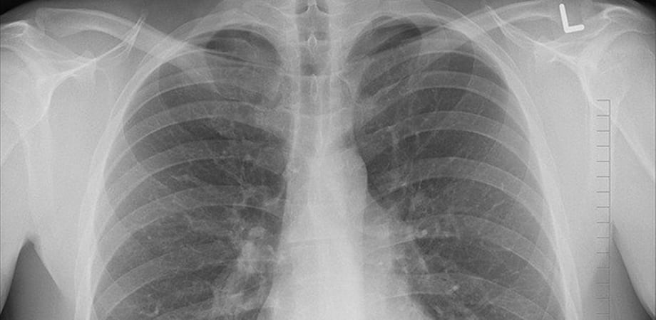 Tratamentul cancerului pulmonar - interventia chirurgicala
