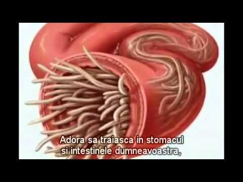 semne ale viermei rotunde din corpul uman durerea cauzată de negi genitale