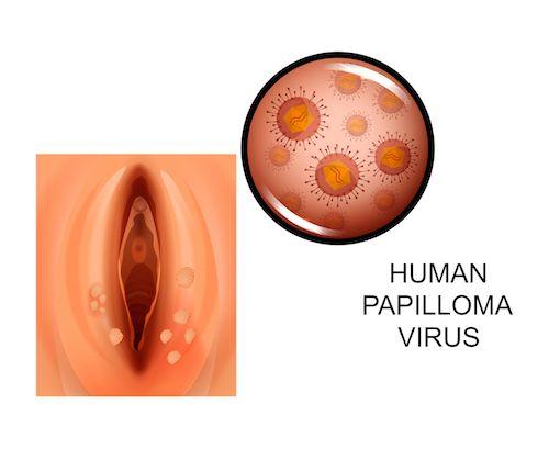 hpv virus a muzi