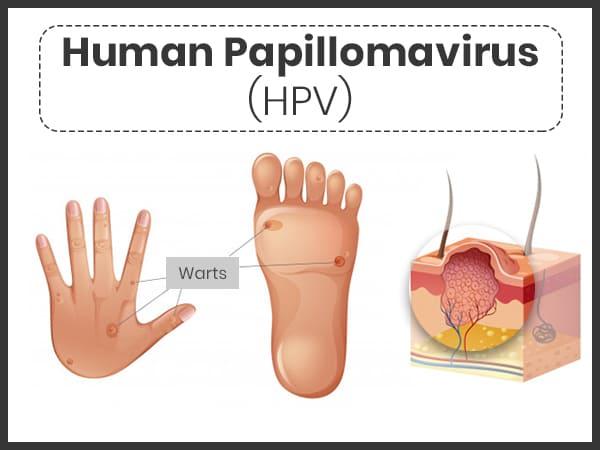 Hpv virus treatment