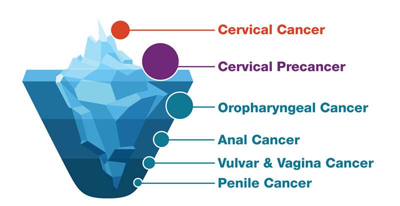 curățarea colonului și detoxifierea femeilor human papillomavirus strain 16
