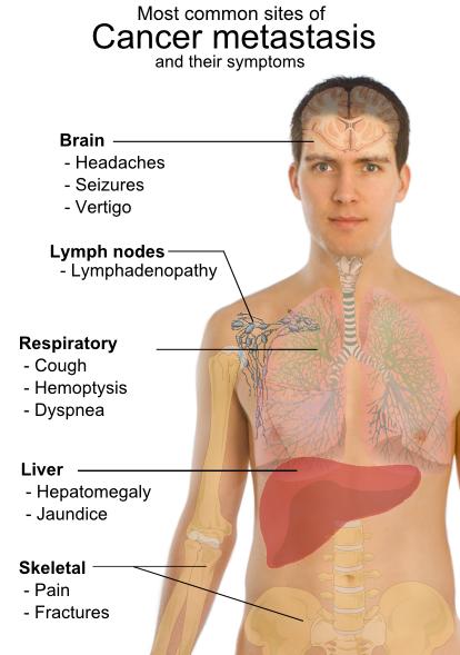 Cancerul de colon - Previne cancerul