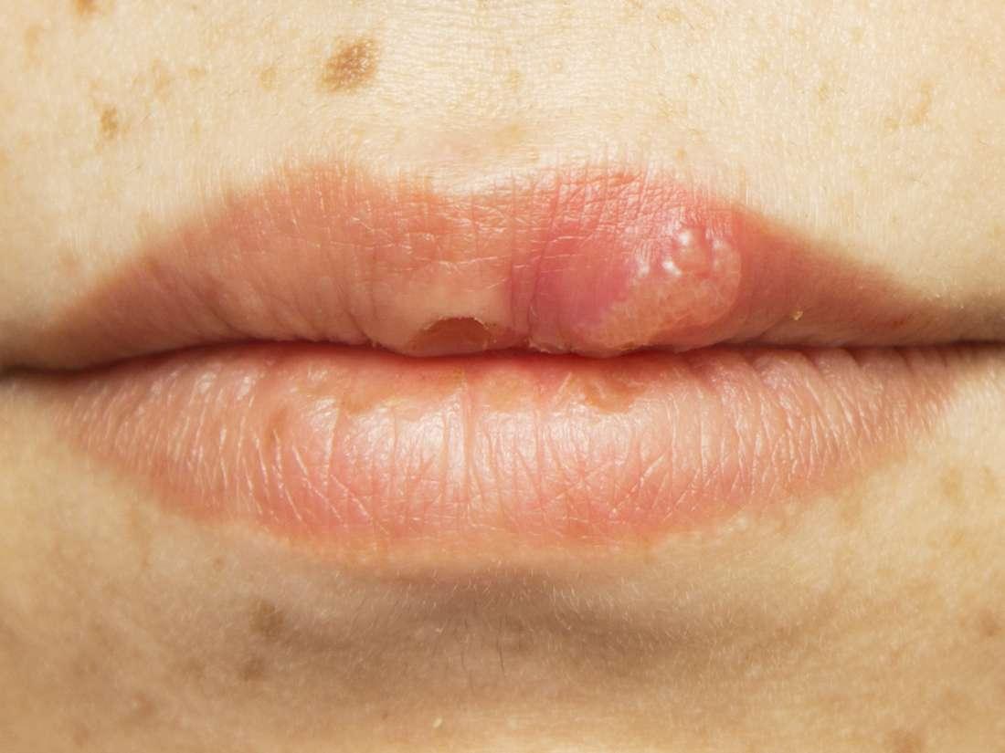 Unde pot elimina papiloame Voronezh - Tratamentul pigmentării | Infecție fungică