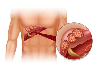 Metastazele hepatice