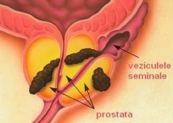 Cancerul de prostata: Simptome, Cauze, Tratament - topvacanta.ro