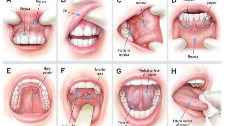 Cancer la cap și la gât – tot ce trebuie să știi