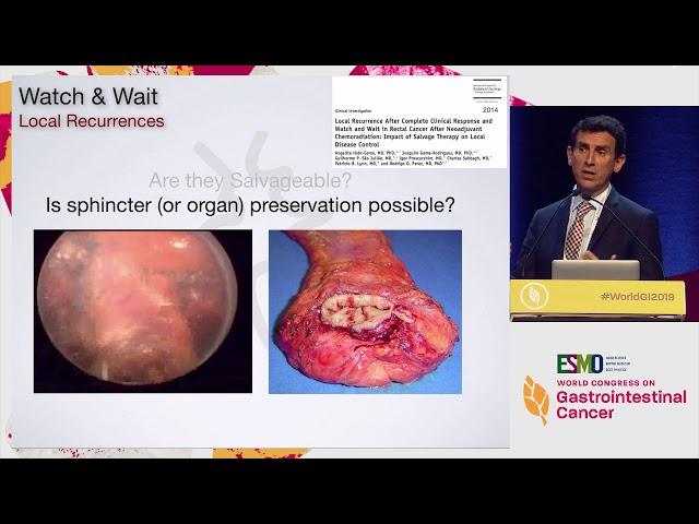 cancer neuroendocrine tumour paraziti tratamentul capului